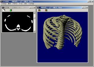 CTView_bone.jpg, SIZE:792x563(163.5KB)